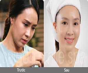 hong-diem-len-tieng-truoc-nghi-van-phau-thuat-xoa-nhan